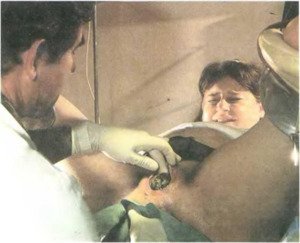 Разрезание пизды вагины влагалища видео фото10